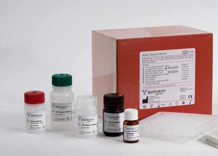 人巨噬细胞来源的趋化因子(MDC/CCL22)ELISA试剂盒价格